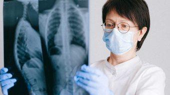 KOL och andra sjukdomar i andningsorganen